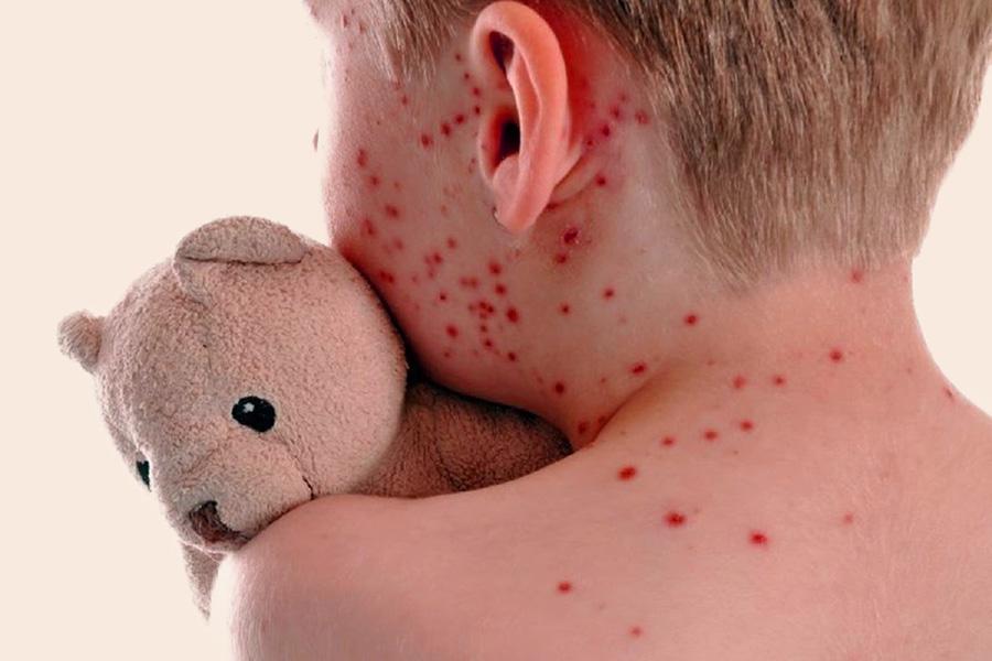 malattie esantematiche nei bambini