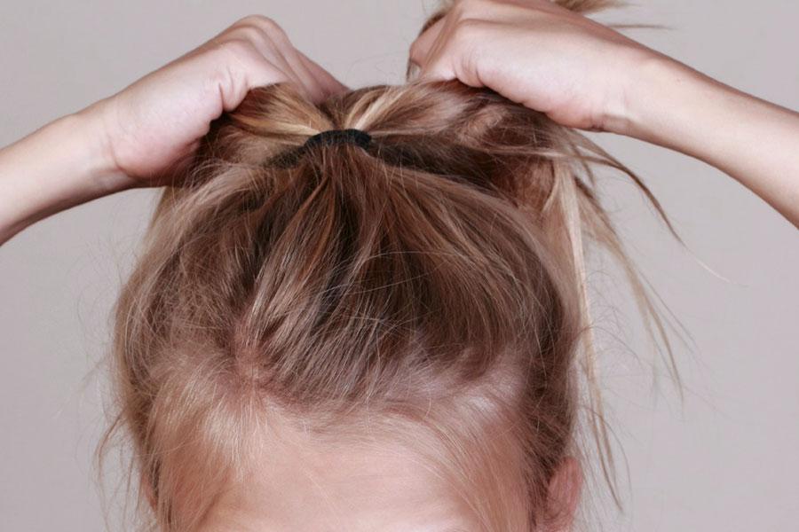 tricotillomania capelli bambina