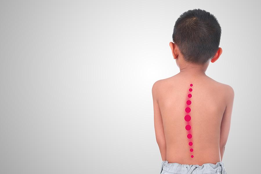 deformità colonna vertebrale