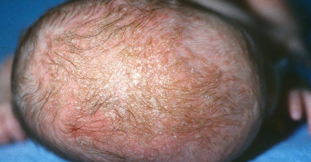 Dermatite seborreica Mammastobene.com