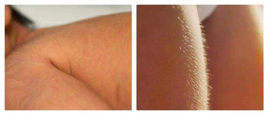 cause della peluria sul corpo