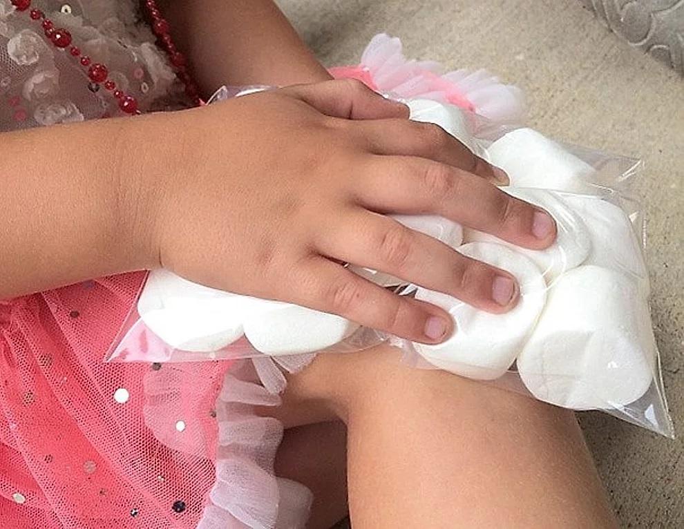 Marshmallow congelati come borsa del ghiaccio quando il bambino si fa male