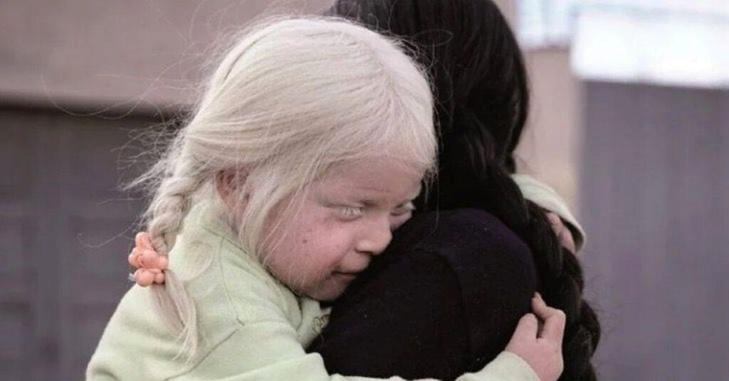 Storia di una madre e figlia albine