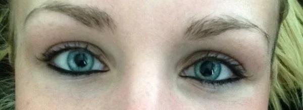 pupille hanno sempre dimensioni diverse