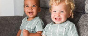 Due gemelli con pelle diversa