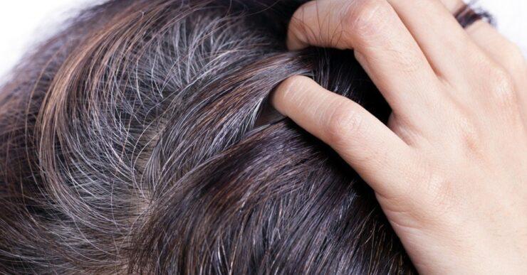Rimedi contro i capelli grig