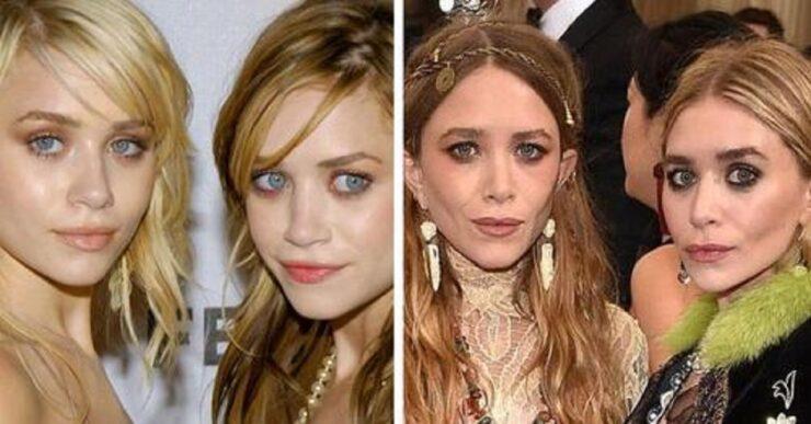foto che mostrano il passare del tempo nel viso dei famosi