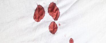 Come rimuovere le macchie di sangue